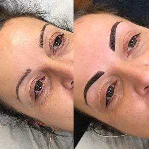 before-after-pictures